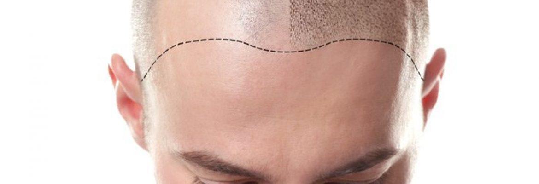 Hair Transplantation Clinic in Kochi